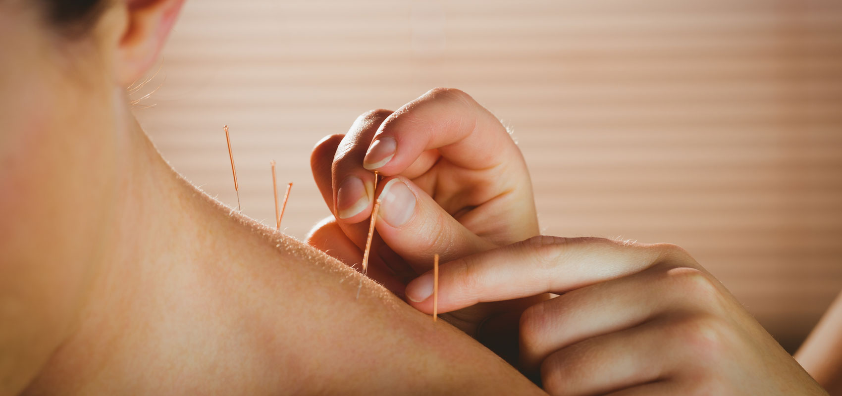 Acupuncture in Ottawa